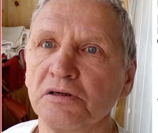 В Волжском ищут мужчину со шрамом на голове