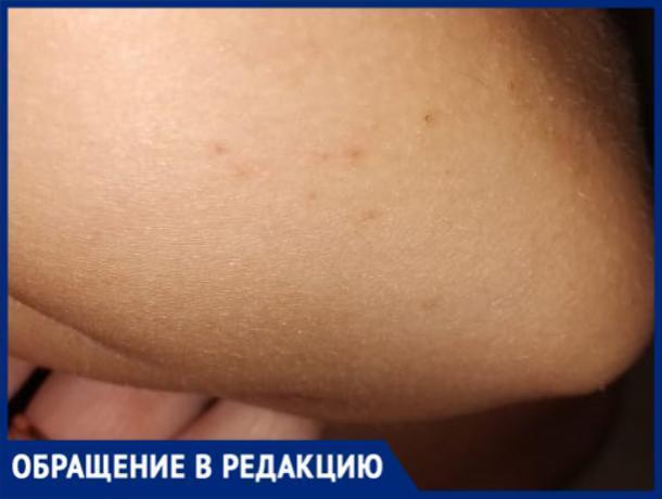 «На мою дочку напал рой ос. Около двадцати укусов в кисти, локти и ноги», - волжанка
